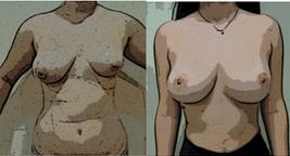 Mejora de pecho y de silueta corporal